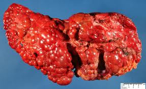 cirrhosis_of_the_liver[1]